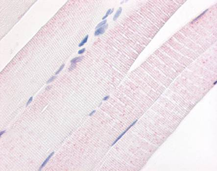 Immunohistochemical staining of paraffin embedded human skeletal muscle tissue using Phosphodiesterase 7a antibody (primary antibody at 1:200)