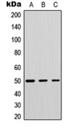 Western blot analysis of human tonsil (Lane1), mouse testis (Lane2), mouse muscle (Lane3) whole cell using Phospholipase D4 antibody