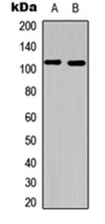 Western blot analysis of HeLa (Lane1), mouse liver (Lane2) whole cell using PI3K p110 alpha antibody