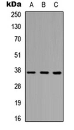 Western blot analysis of HEK293T (Lane1), Raw264.7 (Lane2), H9C2 (Lane3) whole cell using PINX1 antibody