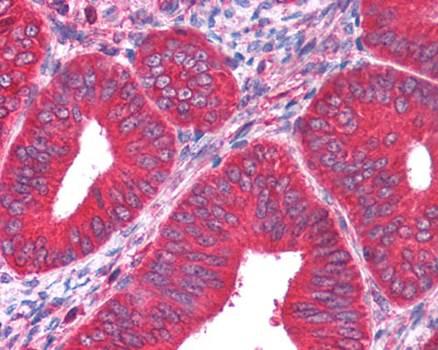 Immunohistochemical staining of paraffin embedded human uterus tissue using PKM2 antibody (primary antibody at 1:200)