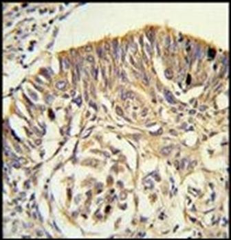Immunohistochemical staining of paraffin embedded human lung carcinoma tissue using PLTP antibody (primary antibody dilution at: 1:50-100)