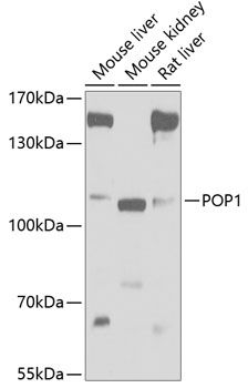 Western blot analysis of extracts of various cell lines lysates using POP1 antibody
