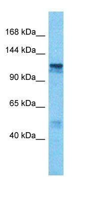 Western blot analysis of human Jurkat Whole Cell tissue using PP6R2 antibody