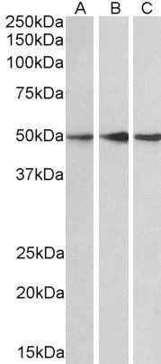 Western blot analysis of  Human Cerebellum (Lane1), Mouse (Lane2) and Rat (Lane3) Brain lysate using PPP2R5E antibody