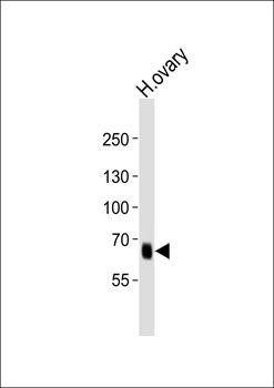 Western blot analysis of human ovary tissue lysateusing PRDM13 antibody (primary antibody dilution at: 1:1000)