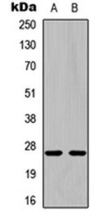 Western blot analysis of Jurkat (Lane1), NIH3T3 (Lane2) whole cell using pro-NGF beta antibody