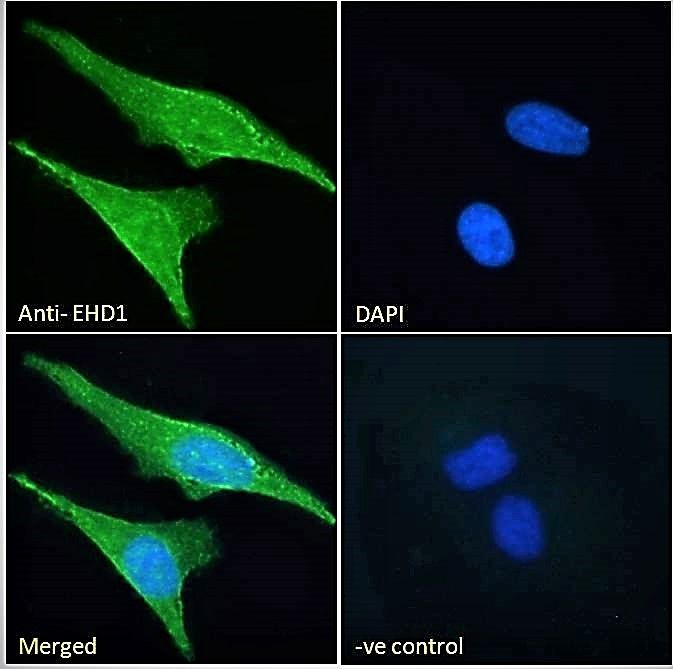 Immunofluorescence analysis of HeLa cells using EHD1 antibody.