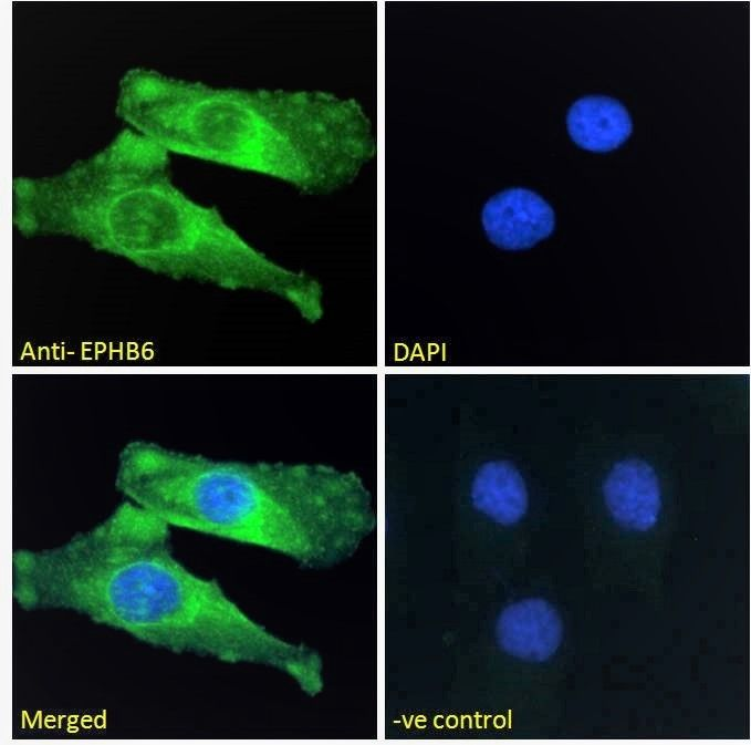 Immunofluorescence analysis of HeLa cells using EPHB6  antibody.