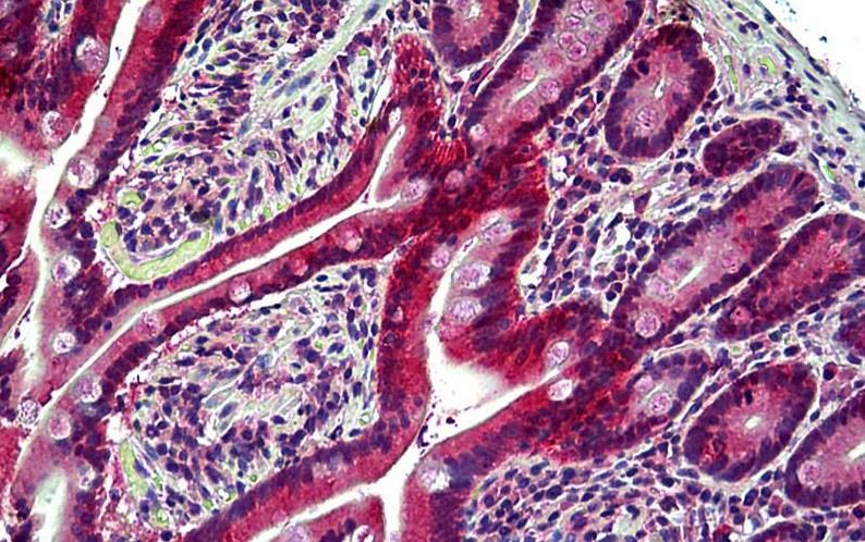 Immunohistochemical staining of Human Small Intestine using EPHB6 antibody.