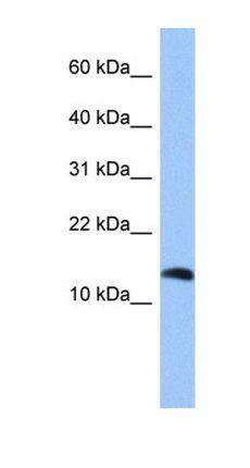 Western blot analysis of HepG2 cell lysate tissue using PTH2 antibody