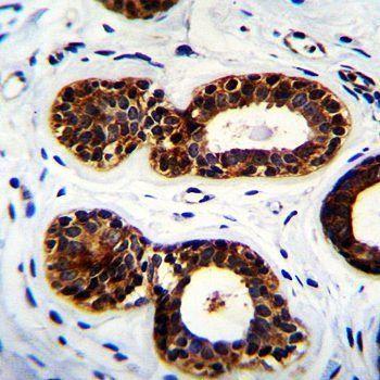 Immunohistochemical analysis of formalin-fixed paraffin embedded human breast tissue using QTRTD1 antibody