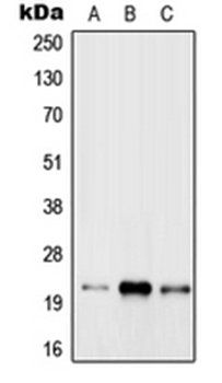 Western blot analysis of MCF7 (Lane 1), Raw264.7 (Lane 2), rat brain (Lane 3) whole cell lysates using RAB31 antibody
