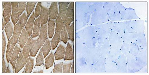Immunohistochemical analysis of formalin-fixed and paraffin-embedded human skeletal muscle tissue using RAB34 antibody