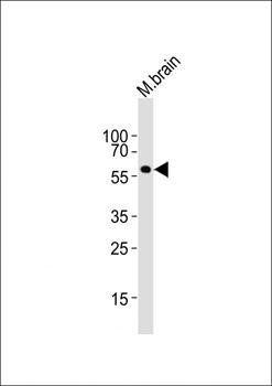 Western blot analysis of mouse brain lysatesusing Rad9a antibody (primary antibody dilution at: 1:1000)
