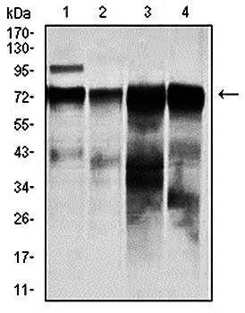 Western blot analysis of HeLa (Lane1), A431 (Lane2), HepG (Lane3), and SW620 (Lane4)cell lysate using RAF1 antibody