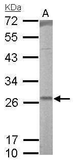 Western blot analysis of rat lung lysate using RALA antibody