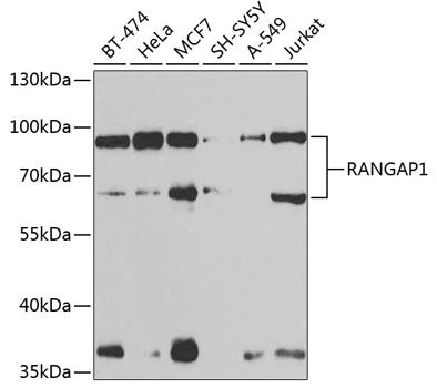 Western blot analysis of extracts of various cell lines lysates using RANGAP1 antibody