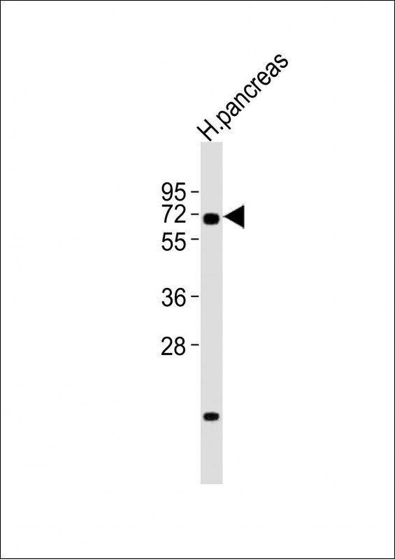 WB analysis of human pancreas lysates/proteins at 20 µg per lane using RBPJ antibody