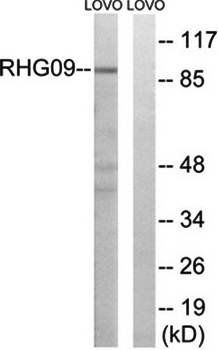 Western blot analysis of extracts from LOVO cells using RHG9 antibody
