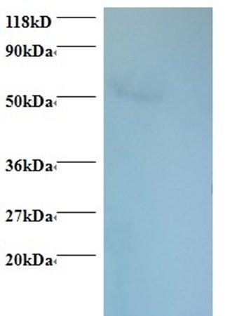 Western blot analysis of (Lane 1): EC109 whole cell lysate(Lane 2): 293T whole cell lysateusing Rhombotin-1 antibody (Biotin)