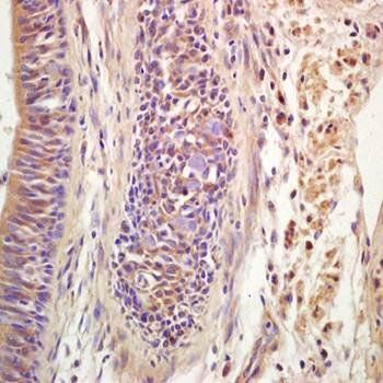 IHC-P of human lung carcinoma tissue (dilution at:1:200) using Ribonuclease Inhibitor antibody
