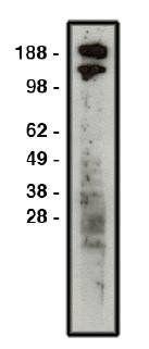 Western blot analysis of HT-29 cell lysate using ROBO1 antibody