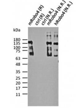 Western blot analysis of Robo4 antibody