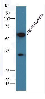 Western blot analysis of mouse lung lysates (Lane1), mouse brain lysates (Lane2) dilution at:1:200 using ROR Gamma antibody