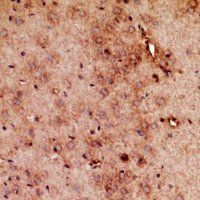 Immunohistochemical staining of mouse brain tissue using RRP7A antibody