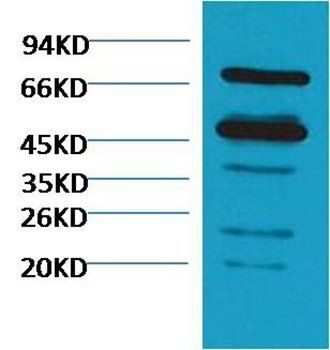 Western blot analysis of Arabidopsis thaliana using Rubisco antibody (diluted at 1:5000)