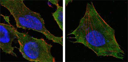 Confocal immunofluorescence analysis of Hela (left) and L-02 (right) cells using S100A10/P11 antibody