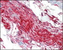 Immunohistochemical analysis of paraffin-embedded human nerve and ganglion cells using S100A10/P11 antibody.