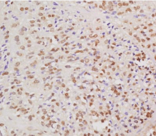Immunohistochemical analysis of formalin fixed and paraffin embedded human cervical carcinoma using HPV16 E6 protein antibody