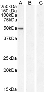 Western blot analysis of K562 nuclear cell lysate (lane 1) + peptide (lane 2) and negative control Human Hippocampus (lane 3) lysate using GATA1 antibody.