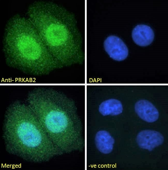 Immunofluorescence analysis of paraformaldehyde fixed MCF7 cells using PRKAB2 antibody.