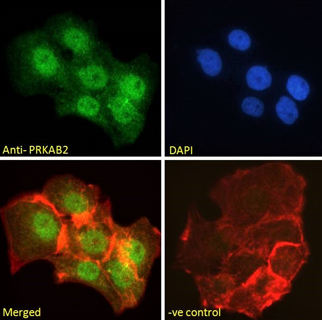 Immunofluorescence analysis of paraformaldehyde fixed A431 cells using PRKAB2 antibody.