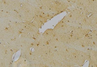 Immunohistochemical staining of Mouse brain tissue using NeuN antibody.