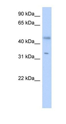 Western blot analysis of Transfected 293T tissue using SDR16C5 antibody