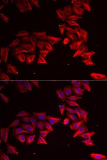 Immunofluorescence analysis of HeLa cell using SFRP4 antibody.