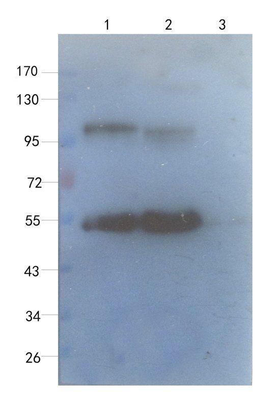 WB analysis of rat lung (lane 1), human breast cancer (lane 2), human thyroid cancer (lane 3), using Sialoadhesin antibody (1 ug/ml)