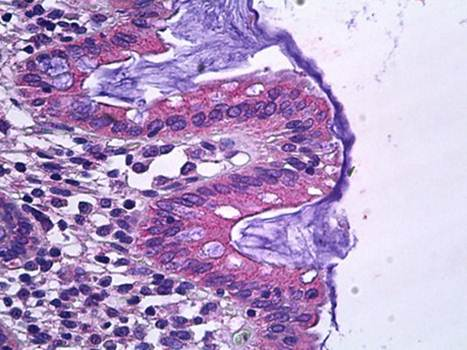 Immunohistochemical staining of paraffin embedded human colon tissue using SLC12A2 antibody (primary antibody at 1:200)