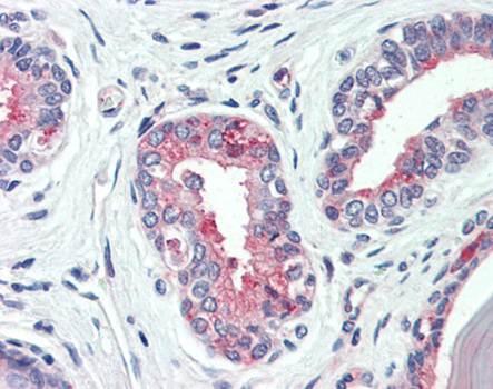 Immunohistochemical staining of paraffin embedded human prostate tissue using SLC12A2 antibody (primary antibody at 1:200)