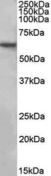 Western blot analysis of human Hippocampus lysate using SLC1A3 antibody (35ug)