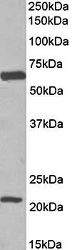 Western blot analysis of human Frontal cortex lysate using SLC1A3 antibody (35ug)