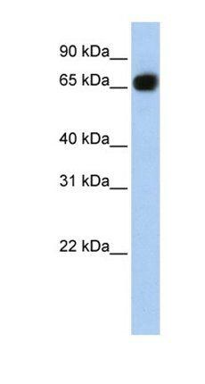 Western blot analysis of human brain tissue using SLC37A1 antibody