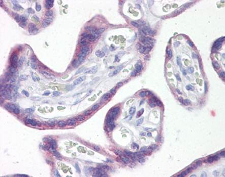 Immunohistochemical staining of paraffin embedded human placenta tissue using SNAIL antibody (primary antibody at 1:200)