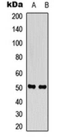 Western blot analysis of HT1080 (Lane 1), Hela (Lane 2) whole cell lysates using SNAT2 antibody