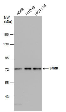 Western blot analysis of Various whole cell using SNRK antibody