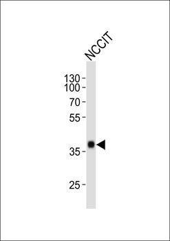 Western blot analysis of NCCIT cell line using SOX2 antibody (primary antibody at 1:1000)